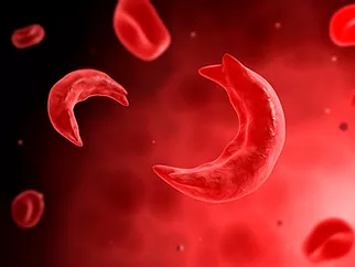Optimizing care for Sickle cell anemia